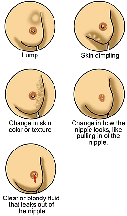Womens health - Breast Cancer